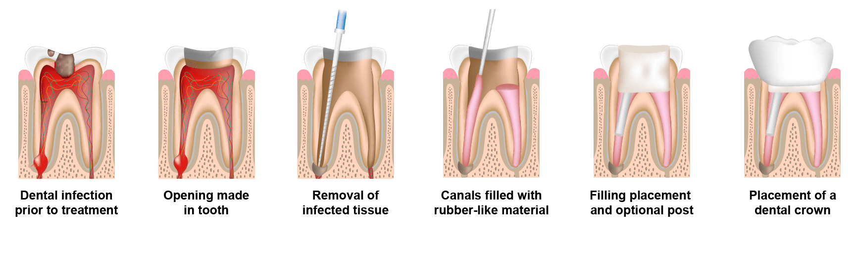 root canal in chicago
